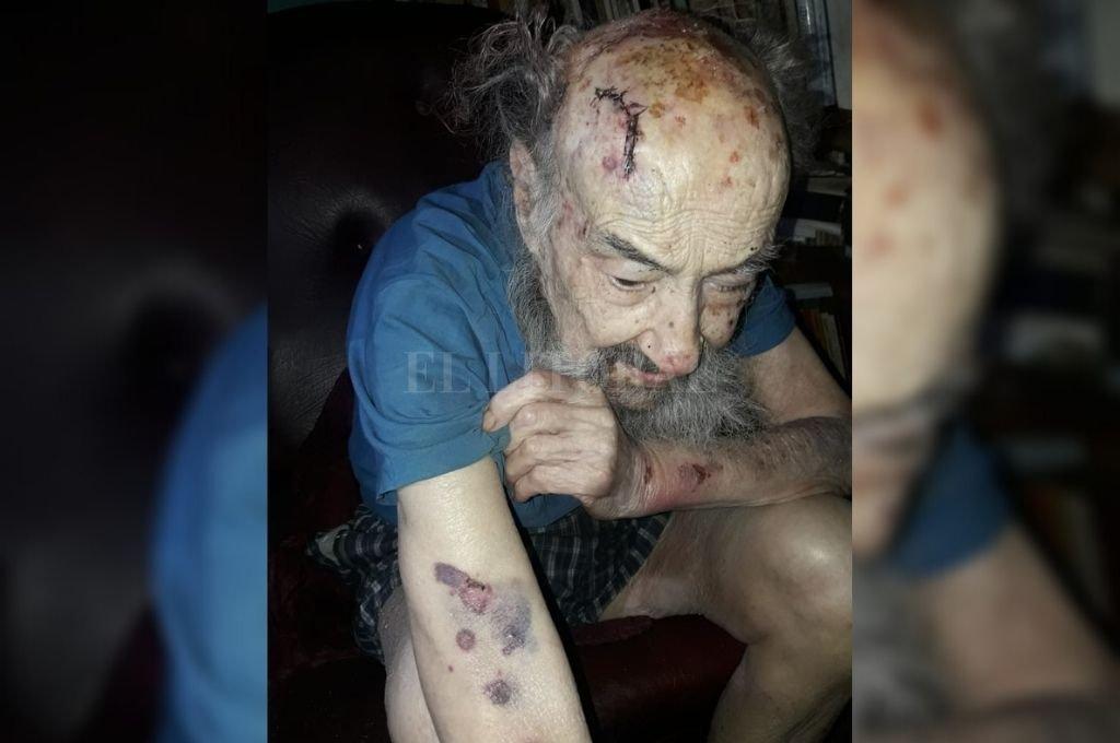 Los martillazos dejaron sus marcas en el cuerpo de Ersilio Ferri.