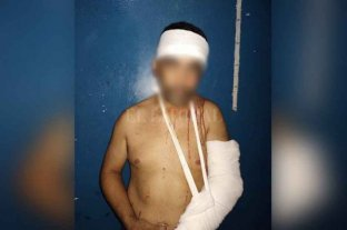 Horror: la golpeó y la roció con alcohol junto a sus dos hijos recién nacidos - El agresor recibió de parte de los vecinos varios golpes que le fracturaron un brazo.
