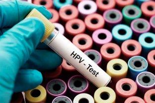 En Argentina mueren más de 2300 mujeres por el virus del papiloma humano