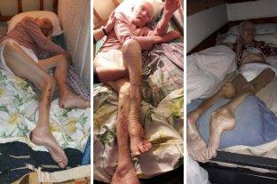 Detuvieron a la dueña de un geriátrico - Las lesiones en los cuerpos de los viejitos dan real dimensión del abandono al que estaban sometidos. Falta de alimentación, atención médica e higiene, son las principales falencias. -