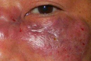 Un raro hongo letal afecta a pacientes con Covid en India