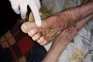 Quedó presa la dueña del geriátrico de Gálvez - Cuatro de once ancianos debieron recibir asistencia por el pésimo estado en el que se encontraban, alguno de los cuales presentaban un cuadro de desnutrición y abandono calamitoso.