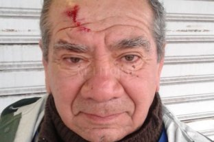 Corrió a un ladrón que le robaba la moto y se lastimó la cabeza