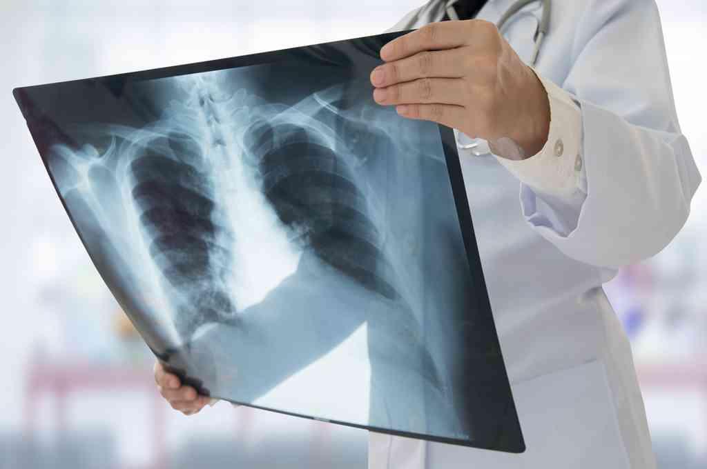 La cantidad de fallecidos por tuberculosis aumentó por primera vez en más de diez años debido al coronavirus. Crédito: Imagen ilustrativa