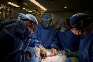 Logran trasplantar con éxito el riñón de un cerdo a un humano